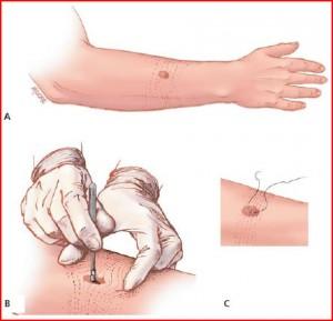 Biopsie cutanata oradea